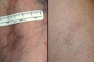 لیزر درمانی قبل و بعد از