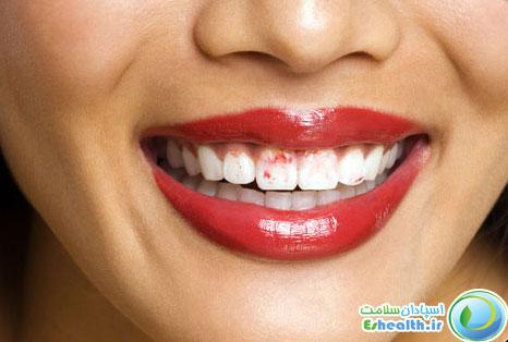 اثرات جانبی خشکی دهان